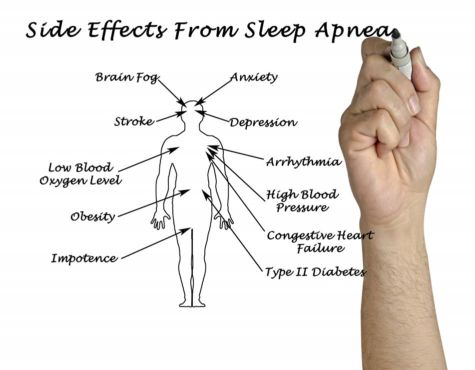 Some of the more serious side effects from Sleep Apnea