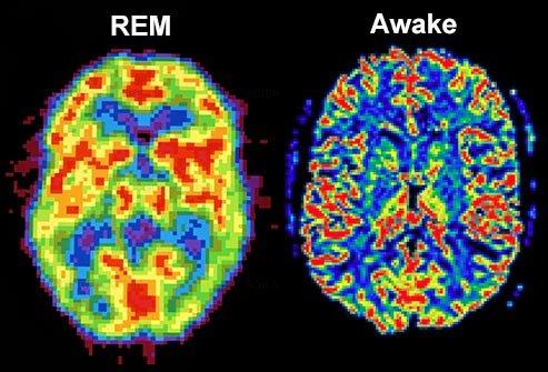 REM sleep, brain activity looks similar to when you're awake.