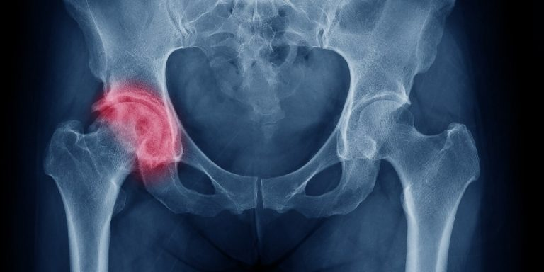 Xray showing Physical discomfort in the hip, which varies from mild to severe